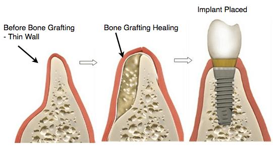 임플란트 뼈이식
